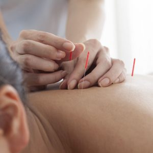 Acupuncture Treatment | Enjoy Acupuncture | New York, NY
